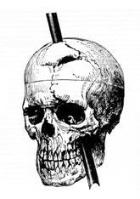 cranio phineas gage